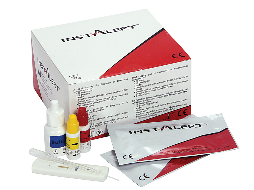 TEST  mononucleoza